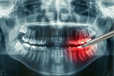 Источник зубной боли на рентгеновском снимке