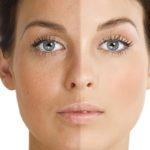 отбеливающие кремы для лица от пигментных пятен